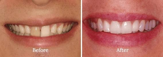 Dental Bonding Case 01