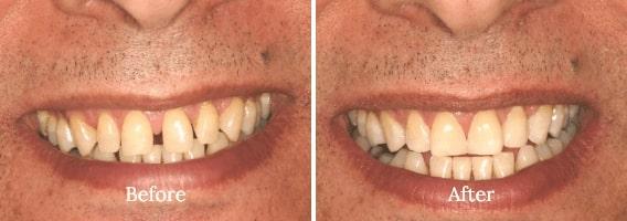 Dental Bonding Case 02
