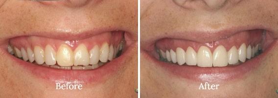 Dental Bonding Case 03