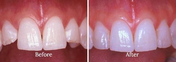 Dental Bonding Case 04