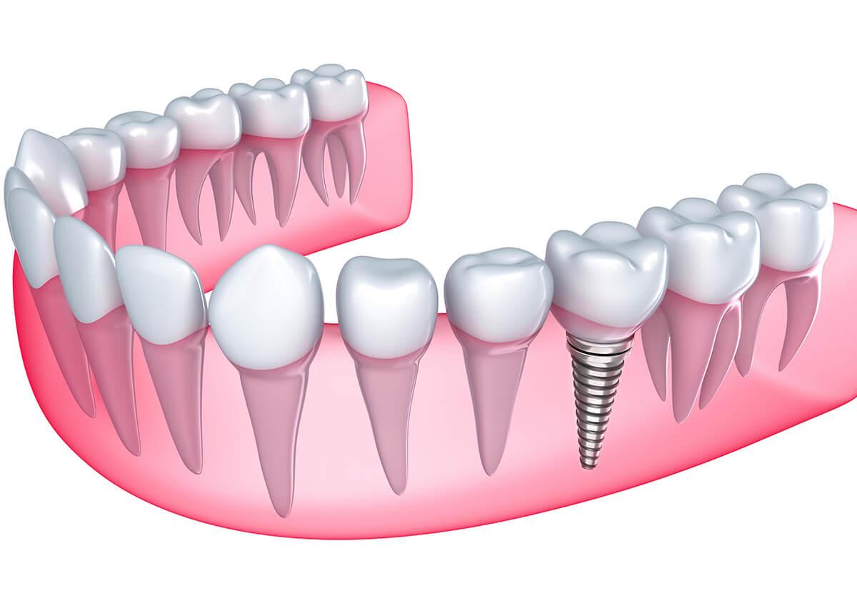 Dentist Provides Safe Dental Implant in Beverly Hills CA Area