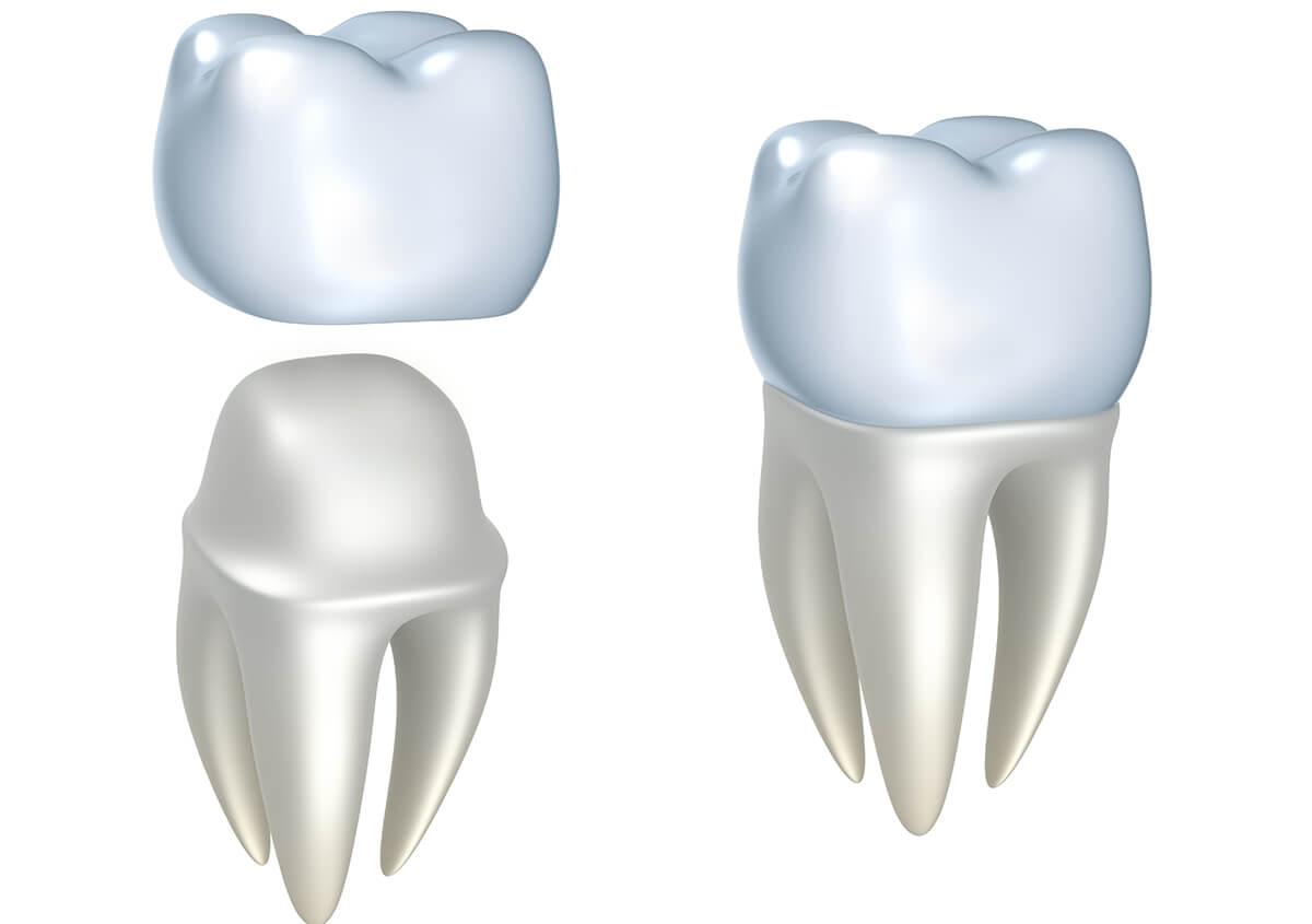 What to Expect from the Dental Crown Procedure