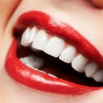 Smile Makeover Dentist in Beverly Hills CA Area