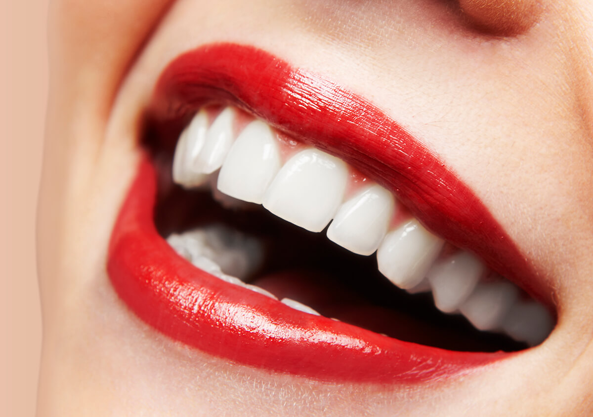 Get the Stunning Smile You Have Always Wanted with a Smile Makeover Dentist in Beverly Hills, California
